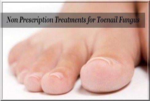 Non Prescription Treatments for Toenail Fungus,toenail fungus pictures  ,toenail…