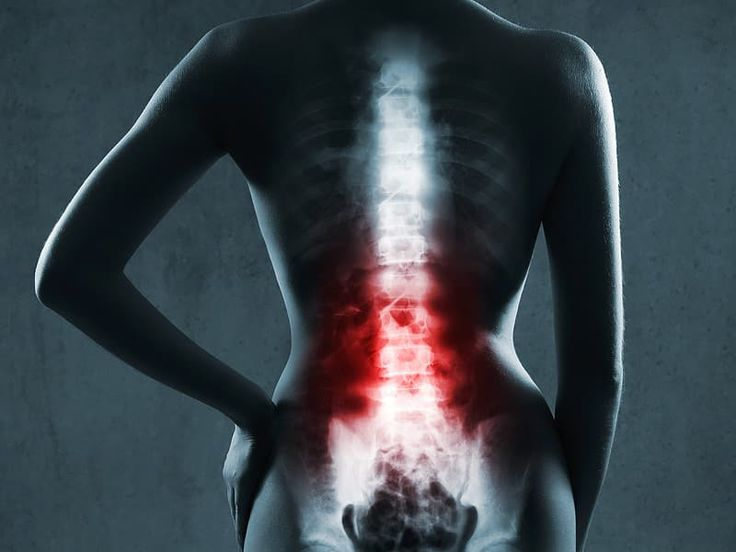 A spinal cord injury, or SCI, may happen because of a quick blow or shift to the spinal column during an automobile accident or crash. Injuries with spinal.