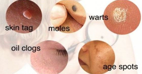 At some point of life, we all can have certain skin issues, like moles, skin tags, clogged pores or skin breakouts. They are all caused ...