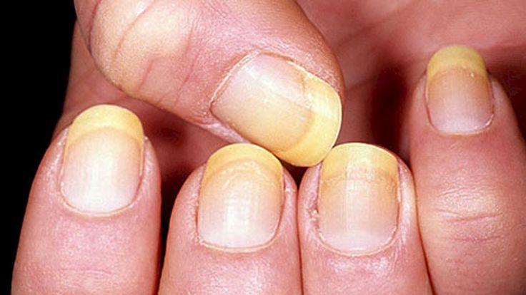 Kijk hoe je goed gezondheid kunt vaststellen op basis van de kleur van je nagels. Je wilt niet weten wat  geel betekent.