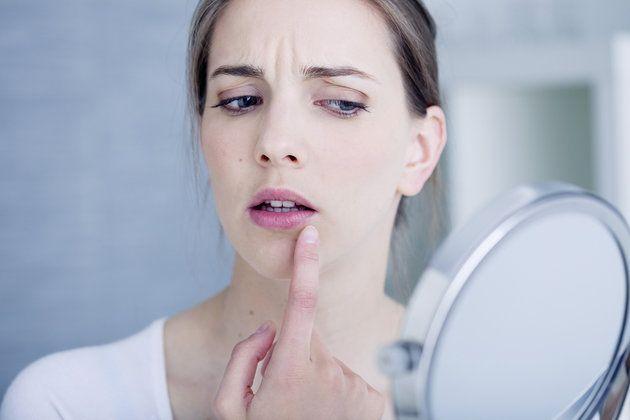 Poznaj 14 sprytnych sposobów na pryszcze, które musisz wypróbować! | JejŚwiat.pl
