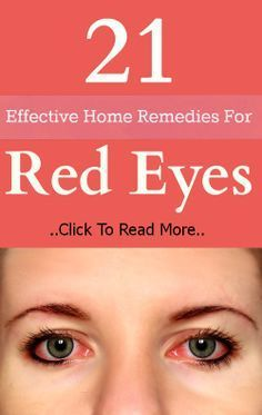 21 Effective Home Remedies For Red Eyes