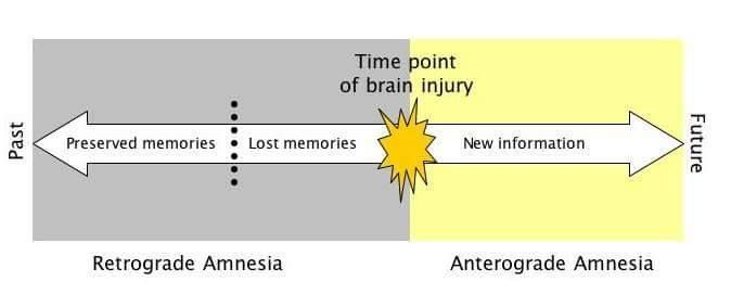 Retrograde and Anterograde Amnesia  Retrograde amnesia: Most memories created prior to the event are lost while new memories can still be created.  Anterograde amnesia: Loss of the ability to create new memories after the event that caused the amnesia, leading to a partial or complete inability to recall the recent past, while long-term memories from before the event remain intact. http://MedicTests.com