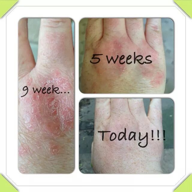 Loving these results from guide plus contact me @ kayleighroddy@hotmail.co.uk If interested