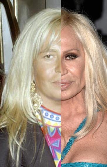 PIC OF THE DAY: Donatella Versace vòòr de verbouwingen ...