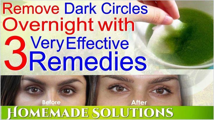 Remove Dark Circles Overnight | Home Remedies To Remove Dark Circles - YouTube
