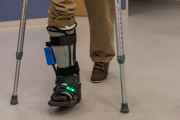 The SmartBoot helps assess the amount of force put on the foot after an injury.