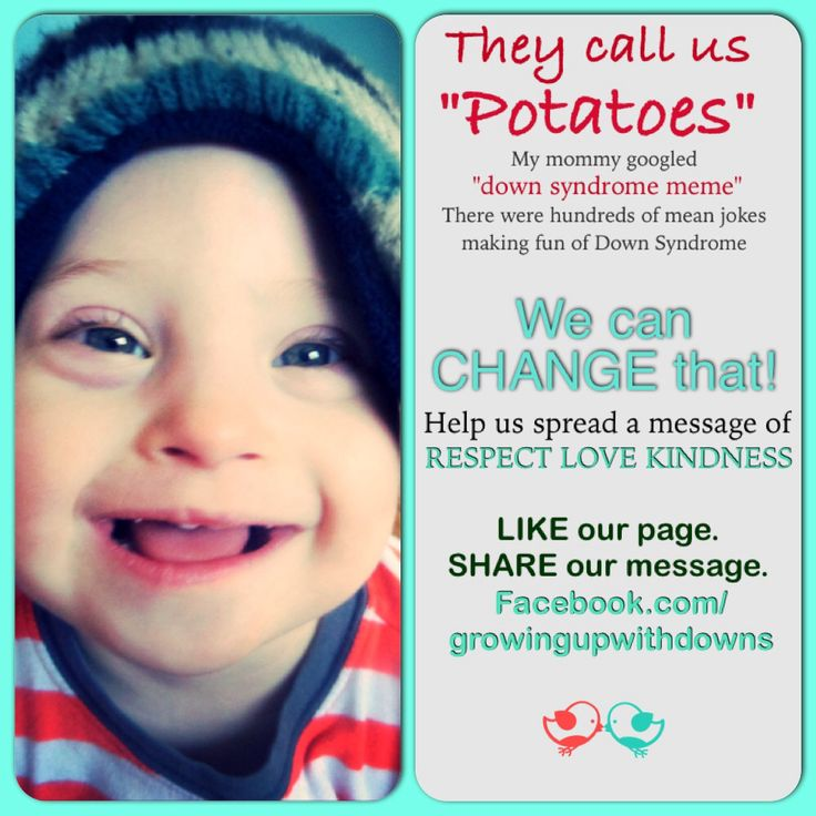 2396b1861dd4287eac25f2a7e2e9b0e3 pro life down syndrome awareness best 25 down syndrome memes ideas on pinterest people laughing,Val Chmerkovskiy Down Syndrome Meme