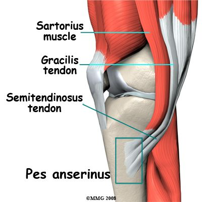 Pes Anserine Bursitis (goosefoot) - knee pain experienced while running. Yup, pes anserine bursitis seems to be the culprit, the medial pain in my knees. Hamstring stretching and quad strengthening are the answer!