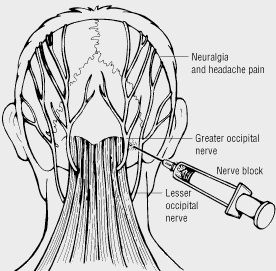 Occipital Nerve Block, has made my life 90% better. If you are thinking about it do not hesitate.