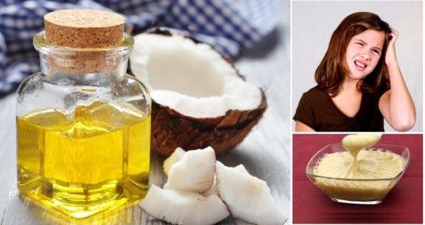 Remedios caseros o naturales para piojos