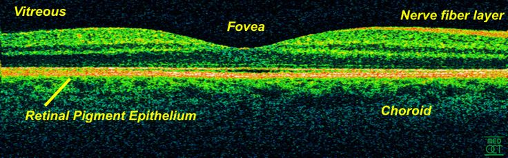 optical+coherence+tomography+scans | ... Care Adds Exciting New OCT Technology – Optical Coherence Tomography