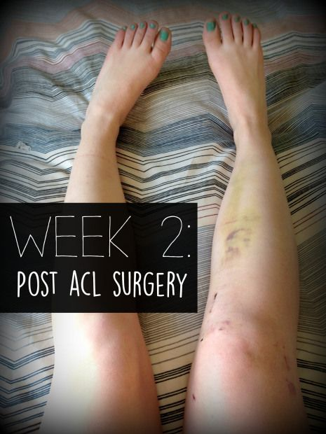 Post ACL Surgery: Week 2 - French Press Runner