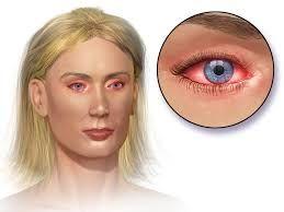 redness mold allergy symptoms