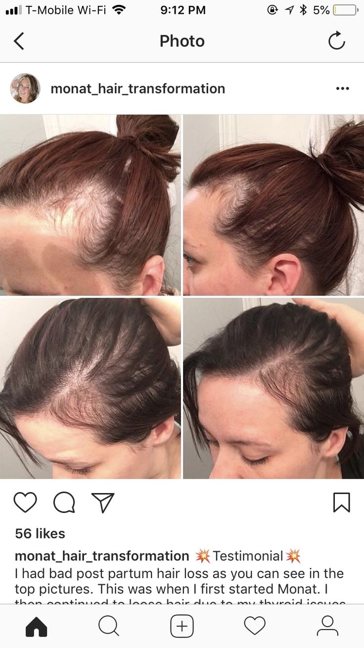 Pin by corinne nulty on MONAT Monat hair, Hair