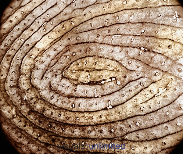 Human fingerprint. The smaller circles within the epidermal ridges are sweat gland ducts.   No two fingerprints, even from identical twins, are said to be exactly alike. SEM X35  | Richard Kessel photo, visuals unlimited