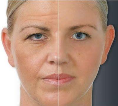 Receita caseira de Botox natural para rugas | Entre Coisas