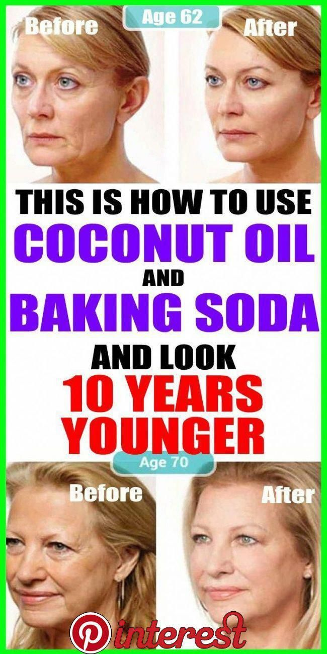 This Is How To Use Coconut Oil And Baking Soda To Look 10 Years Younger   If you have problems with wrinkles and sagging facial skin, do not worry. In the following text we will present you amazing homemade natural cleanser that will put an end to your problems. Loading… //... #lookyoungernaturally