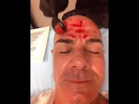▶ Derma Roller REAL RESULTS on a MAN - YouTube