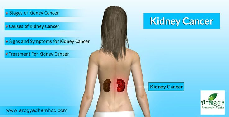 Ayurvedic Kidney Treatment, Ayurvedic Medicine for Kidney Treatment, Renal Failure Treatment in Ayurveda, Ayurvedic Treatment of Chronic Kidney Disease, Ayurvedic Herbal Medicine For Kidney Diseases.