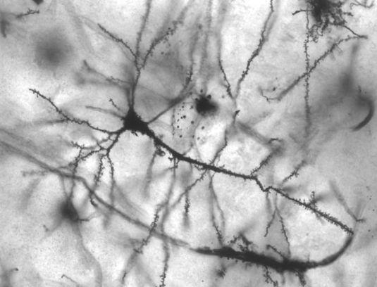 Le cerveau se recâble tout seul après une lésion