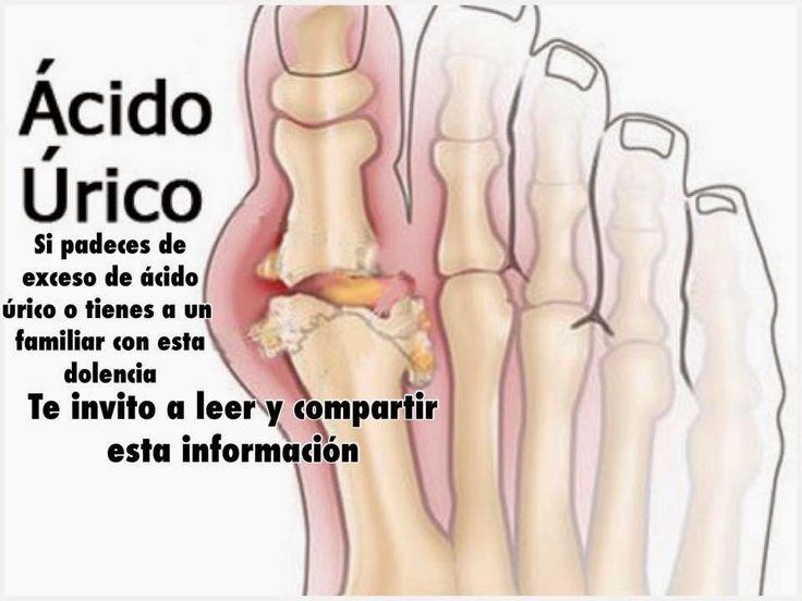 remedios para bajar acido urico alto que alimentos consumir para el acido urico porque sale el acido urico bajo