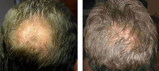 Treatment for hair loss in men and women. Thinning hair can adversely affect confidence.  Treatments to stimulate hair growth using award winning, human identical AQ Skin Solutions Advanced Hair Complex with dermastamp skin needling and Dermalux LED red light therapy.  Courses of five treatments required at weekly intervals Call us to arrange a consultation 01617961169 #hairloss #hairgrowthstimulation #thinninghair #goingbald #hairfallingout
