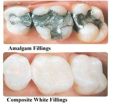 Repair cracked or broken teeth with our quality Dental Fillings. We are leaders for repairing teeth with tooth fillings that give strength to your teeth.