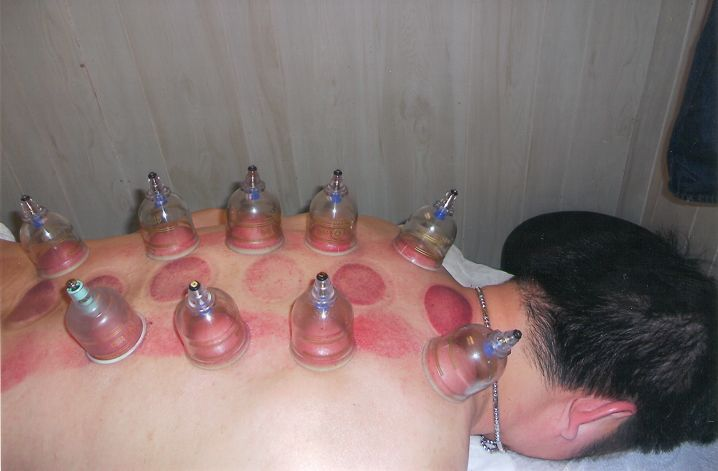 Traditional chinese prick therapy