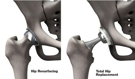Affordable Hip Resurfacing Surgery in India with Joint Replacement Surgery Hospital India