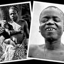 At the age of 32, Ota Benga built a ceremonial fire, chipped off the caps on his teeth and shot himself in the heart with a stolen pistol. Ota Benga was a Congolese Mbuti pygmy known for being featured with other Africans in an anthropology exhibit at the Louisiana Purchase Exposition in St. Louis, ...At the age of 32, Ota Benga built a ceremonial fire, chipped off the caps on his teeth and shot himself in the heart with a stolen pistol. Ota Benga was a Congolese Mbuti pygmy known for being…