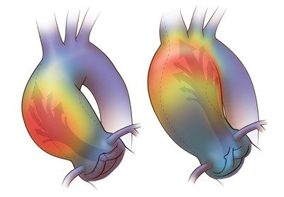 medical illustration of This image uses a colour gradient to describe the  ejection flow patterns associated with two different types of common bicuspid aortic valves. The two different flow patterns actually inflict different shear stresses on the walls of the ascending aorta and produce two different types of aneurysm.