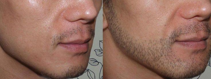 All you need to know about beard transplant.