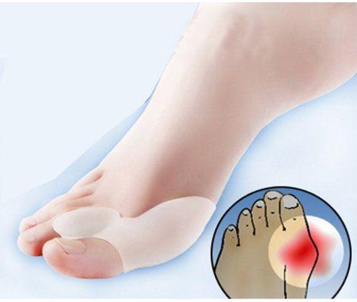 1 par Gel joanete Toe separador, Facilita Foot Pain pé hálux valgo guarda almofada, Ferramenta de extensão dedo do pé em Ferramentas para cuidados com os pés de Beleza & saúde no AliExpress.com   Alibaba Group