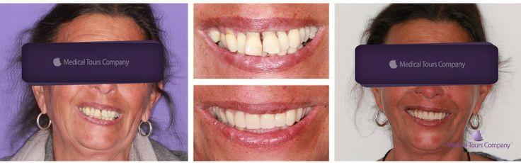Dinti intr-o zi... #implanturi dentare #incarcare imediata