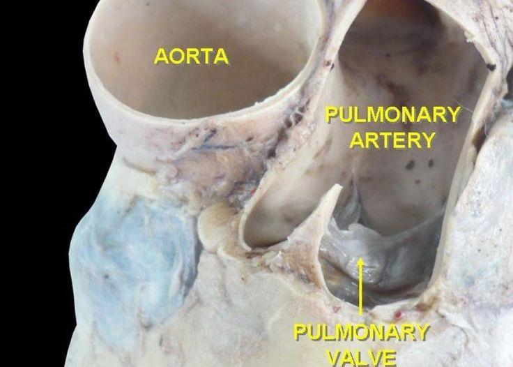 Σάρκωμα πνευμονικής αρτηρίας