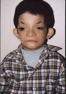 192 best Disfigured/Deformed images on Pinterest | Human ...