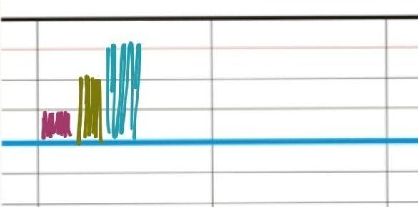 Pour apprendre à respecter le lignage, avant même de commencer à écrire le premier mot, il est important que l'enfant enregistre les nombreuses informations que contient le lignage Seyes qu'il rencontrera tout au long de sa scolarité. Avec quelques petits jeux de reproduction de frises, l'enfant intégrera facilement et rapidement les différents espaces dans lesquels il lui faudra par la suite inscrire les lettres.