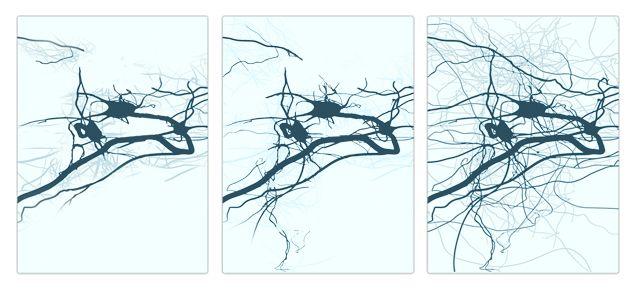 Exercícios de neuroplasticidade