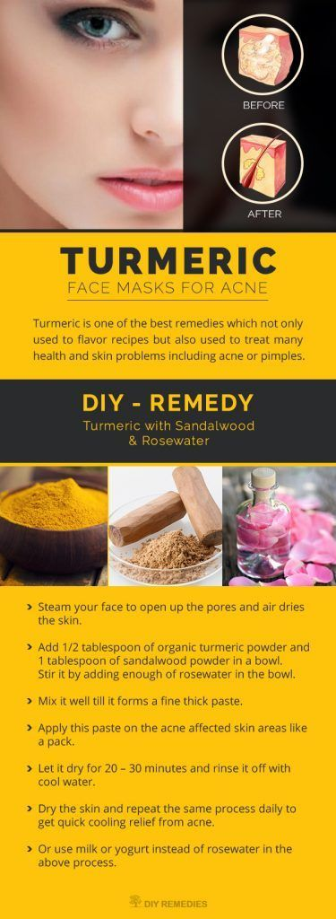 DIY Turmeric Face Masks for Acne
