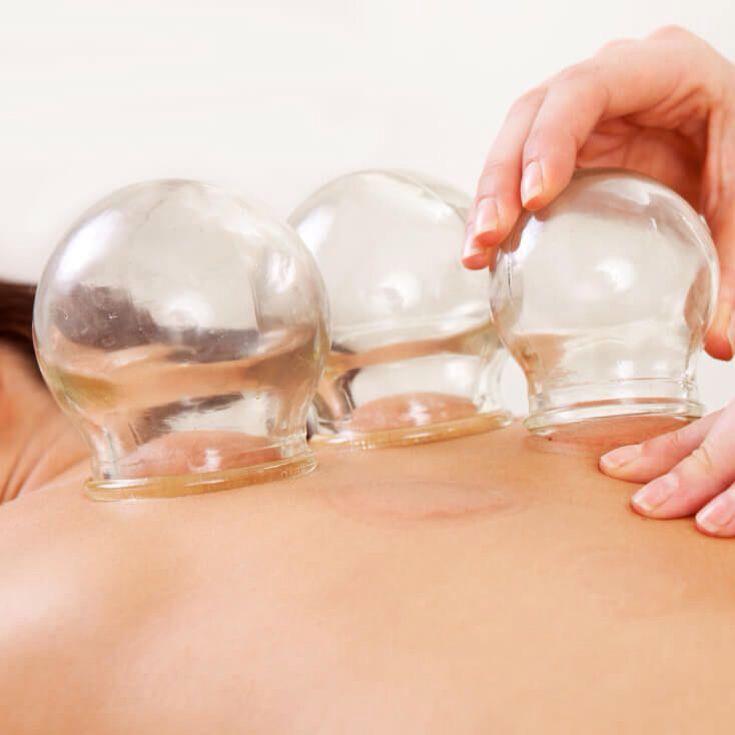 Terapia bańką chińską ogniową. Aby zdjąć bańkę wystarczy ucisnąć lekko skórę przy rancie bańki szklanej aby ją właściwie oderwać od ciała.