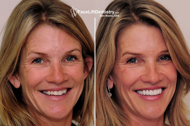 """LA's Best Cosmetic Dentist Dr. Sam Muslin discovering the """"new you"""" by providing you the effective non-invasive Under Bite Correction. It will rectify your bite to provide you complete new look. Trip to the presented link to know more about our services.   #noninvasiveUnderBiteCorrection"""