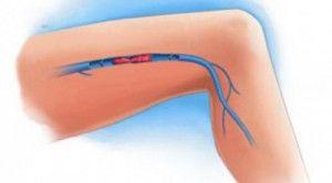 Bacaklarda Kan Pıhtılaşması Semptomları