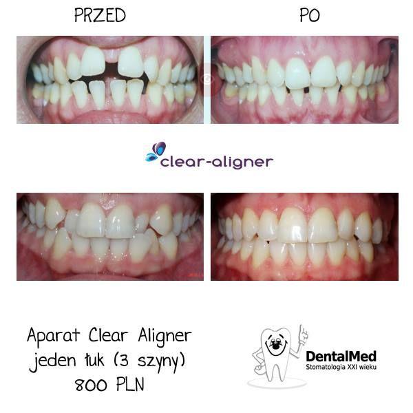 #CLEAR #ALIGNER to innowacyjna metoda leczenia #ortodontycznego za pomocą przeźroczystych nakładek, które prostują zęby, jednocześnie zastępując aparaty stałe i ruchome.
