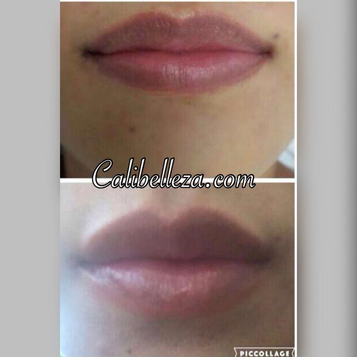 Lip augmentation with plasma gel.  Aumento de labios con plasma gel. Lip vergroting d.m.v plasma gel  #plasma #prp #plasmagel #biofiller #lipaugmentation #aumentodelabios #lipvergroting #fillers #calibelleza #Cali #colombia #thursdaytransformation #nofilter