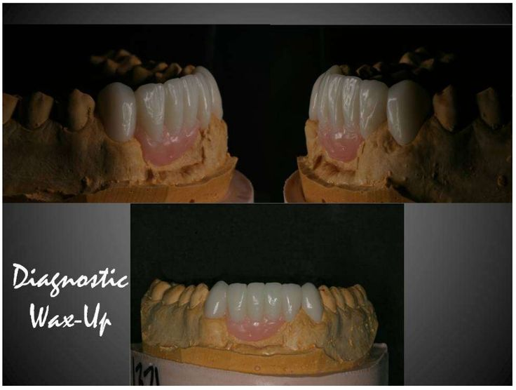 Some great work being posted on Denteez, why not join in the discussion today? #dentistry #DentalApp #Dental #DentalCases #DentalNetwork www.denteez.com
