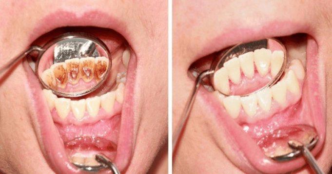 Jak se zbavit zubního kamene