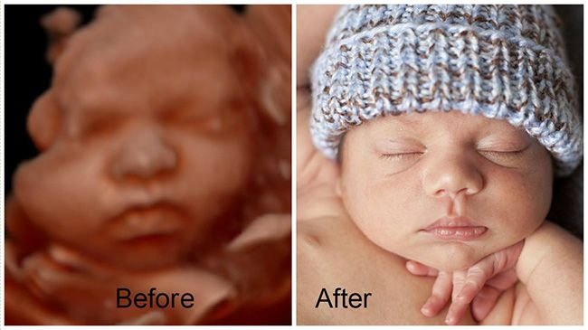 See before and after 3d ultrasound images taken at our facility. See our samples of what you can expect by viewing your baby.