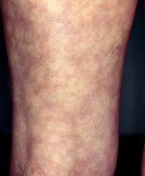 mottled skin
