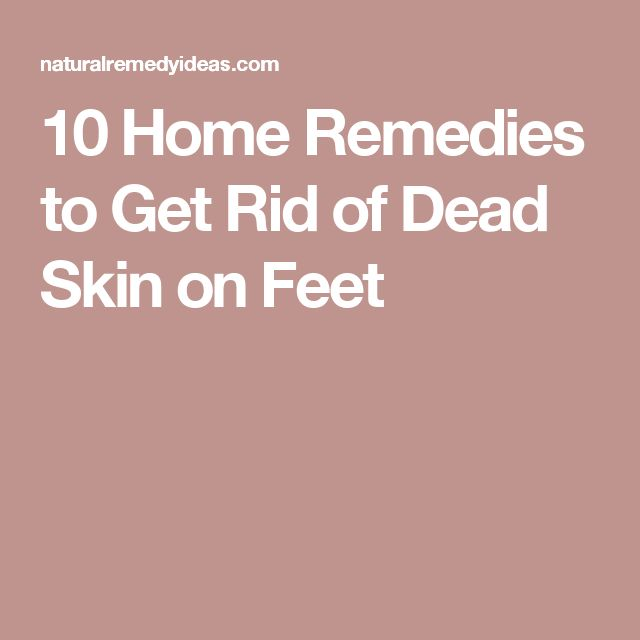 10 Home Remedies to Get Rid of Dead Skin on Feet